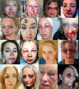 Volsom indvandrekriminalitet og flygtingekriminalitet er skyld i at hvide danske, svenske og norske kvinder får tæsk.